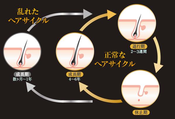 正常なヘアサイクルと乱れたヘアサイクルの違い