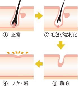 薄毛やボリュームダウンの根本的な原因となるヘアサイクル