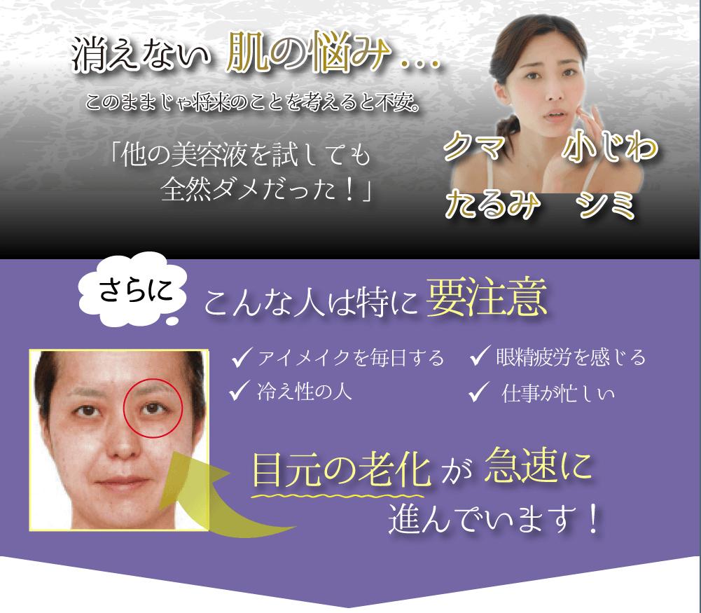 消えない肌の悩み 目元の老化が急速に進んでいます