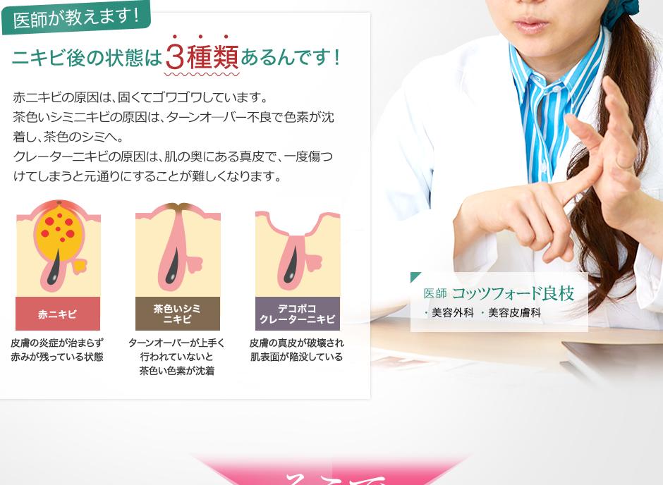 ニキビ後の状態は3種類あるんです!赤ニキビの原因は、固くてゴワゴワしています。茶色いシミニキビの原因は、ターンオ―バー不良で色素が沈着し、茶色のシミへ。クレーターニキビの原因は、肌の奥にある真皮で、一度傷つけてしまうと元通りにすることが難しくなります。1.赤ニキビ:皮膚の炎症が治まらず赤みが残っている状態 2.茶色いシミニキビ:ターンオーバーが上手く行われていないと茶色い色素が沈着 3.デコボコクレーターニキビ:皮膚の真皮が破壊され肌表面が陥没している 医師 ・美容外科 ・美容皮膚科 コッツフォード良枝の画像