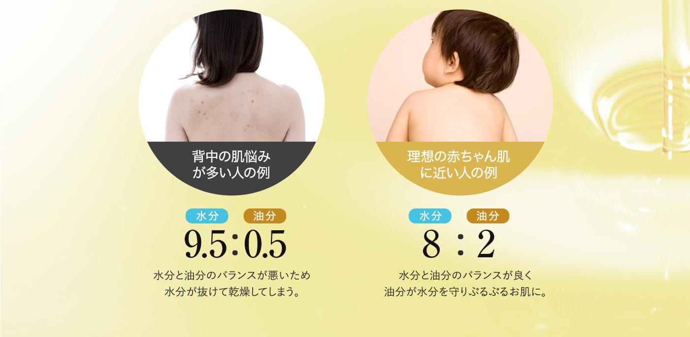 背中ニキビで困っている人の例と、理想の赤ちゃんの背中の比較