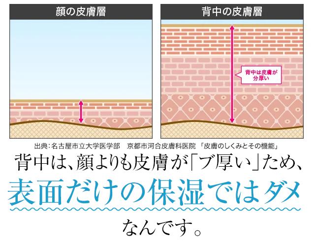 背中は、顔よりも皮膚が「ブ厚い」ため、表面だけの保湿ではダメなんです。